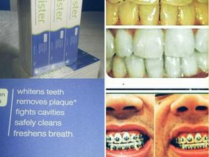 Creme Dental Importado Clareador Em Sao Jose Dos Campos Anuncio