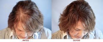 Confecção de perucas de cabelo humano.