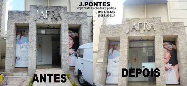 Jp-limpeza de fachada de pedras campo belo