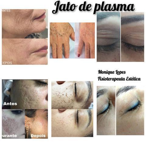 Tratamento facial e remoção de sinal