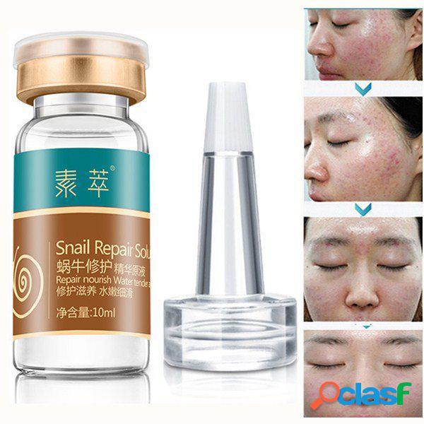 10 ml caracol reparação essência solução hidratante pele suave cicatriz remoção líquido cuidados com a pele